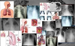 Acute Respiratory Disease Syndrome (ARDS) - a very serious lung condition