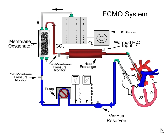 extracorporeal membrane oxygenation ecmo You know that venovenous extracorporeal membrane oxygenation (ecmo) is an option for patients like mr jackson who have severe ards, but its use has been controversial, and you are not sure.