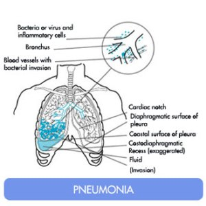 Besides flaards, the other predominant disease patterns associated with the pandemic flu virus are community-acquired bacterial pneumonia and an exacerbation by the virus of airflow limitation.